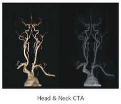 Clinical Images - Head and Neck CTA - ANATOM 128 Revolutionary 128-Slice CT Scanner - KAS Medics Ltd