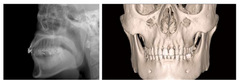 Cephalometric function - DENTOM CBCT Dental Cone Beam Computed Tomography System - KAS Medics Ltd
